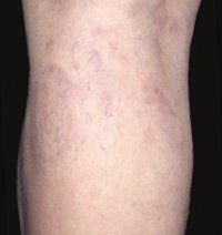 Laser Treatment Pictures - Before and After 2