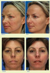 Mico Laser Facial Peels - Before and After Pictures Small