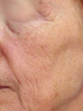 Micro Laser Facial Peels - Before and After 4