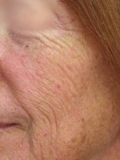 Micro Laser Facial Peels - Before and After 3