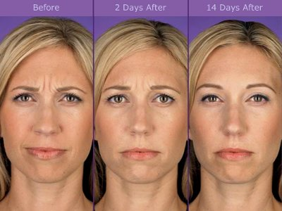 Botox ® Injection Pictures - Before and After 1