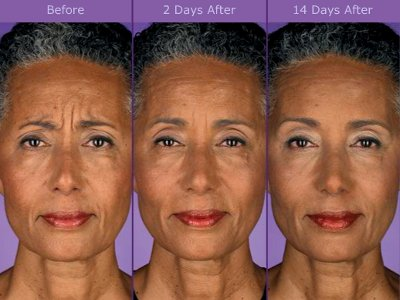 Botox ® Injection Pictures - Before and After 2