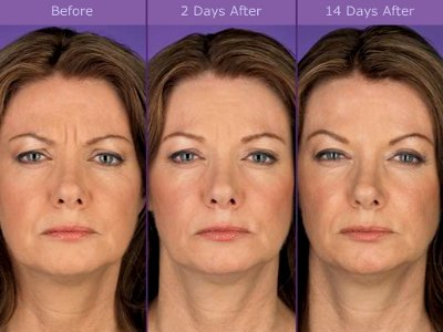 Botox ® Injection Pictures - Before and After 3
