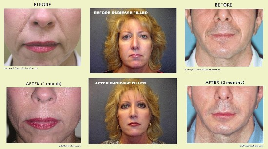 Facial Fillers - Before and After 1