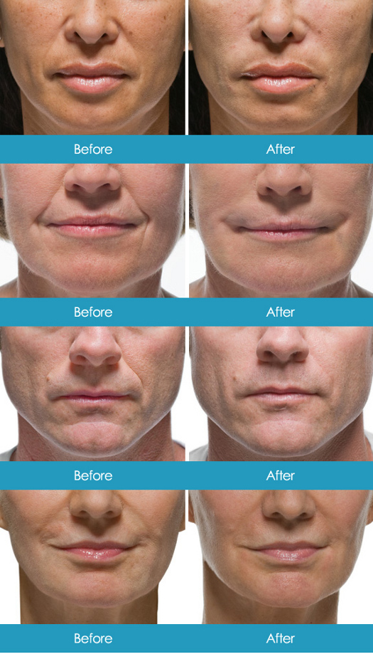 Facial Fillers - Before and After 2